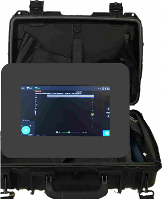 Equine Veterinary Ultrasound Scanner for tendon and reproduction Pie